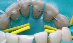 Показания к шинированию зубов в стоматологии – результаты шинирования