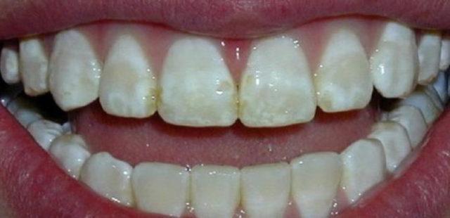 Как спасти зубы при флюорозе зубов – польза и вред фтора для зубов, профилактика избытка фтора
