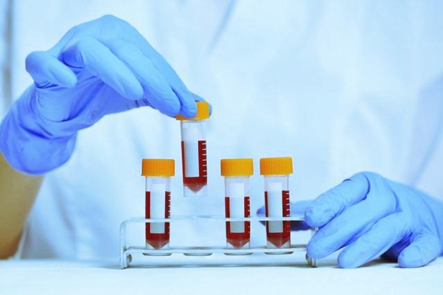 Анализ крови на сифилис – правила и методы сдачи анализа на сифилис, расшифровка результатов