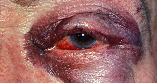 Ушиб глаза - степени контузии глазного яблока, симптомы, первая помощь и лечение