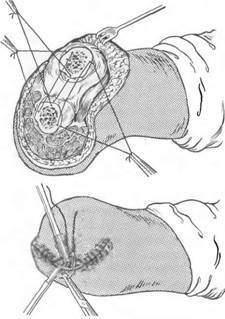 Ампутация ноги, руки, органов - показания, техники ампутации