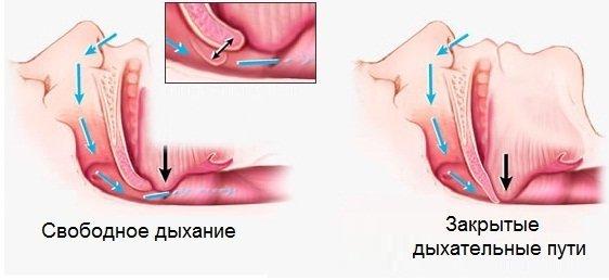 Лечение храпа хирургическим путем – показания и виды операций от храпа, результат