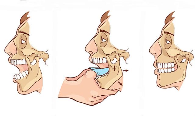 Причины и симптомы вывиха нижней челюсти – какой врач вправляет челюсть при вывихе?