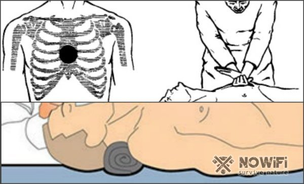 Остановка сердца – причины и признаки внезапной остановки сердца и оказание первой помощи