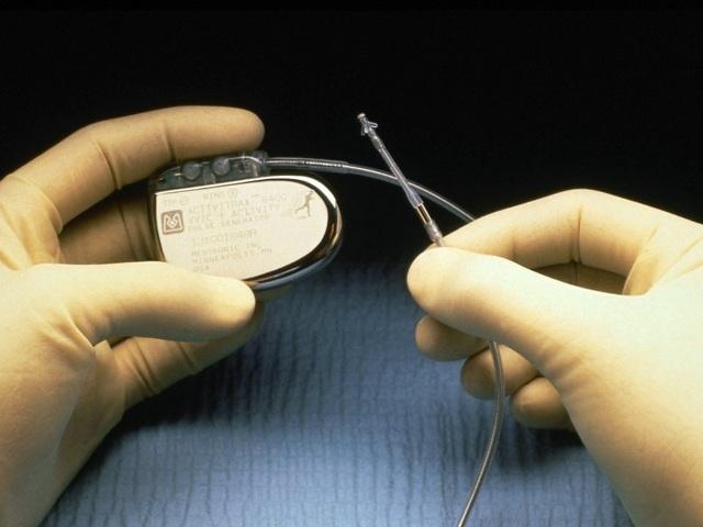 Виды, цены кардиостимуляторов сердца сегодня – какой лучше?