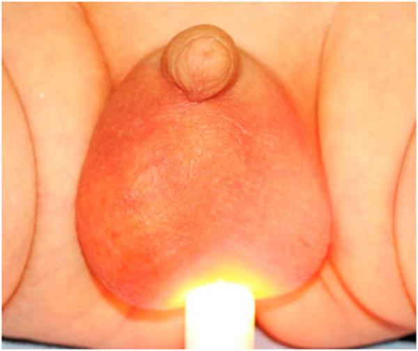 Нужна ли операция при видянке яичка у ребенка - причины и лечение гидроцеле
