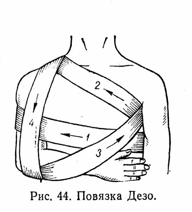 Разрыв мышц – симптомы травмы и методики лечения