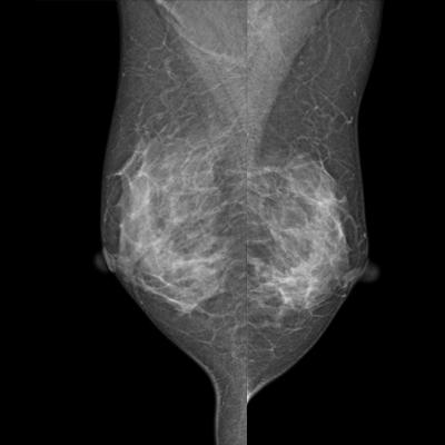 Купить маммограф - сравниваем виды и цены на маммографы