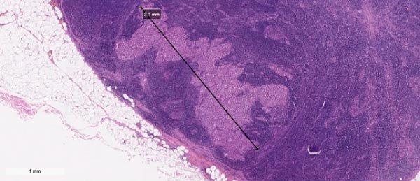 Лечение меланомы кожи на разных стадиях, метастазы, прогноз для жизни