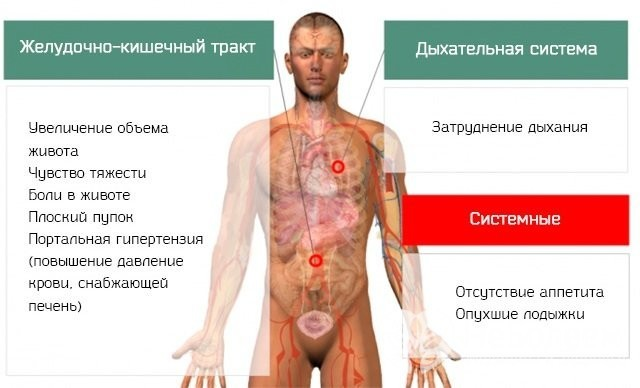 Асцит брюшной полости - причины, стадии, лечение, прогноз