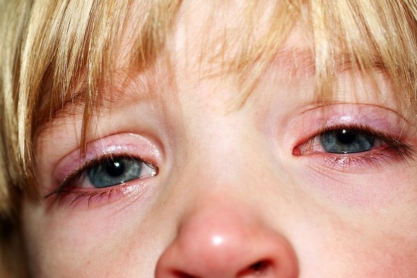 Конъюнктивит – разновидности, симптомы и методики лечения заболевания