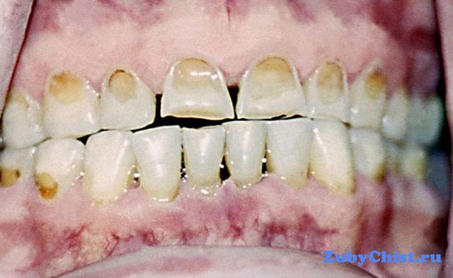Симптомы некроза зубов - виды некротических зубных поражений и причины заболевания