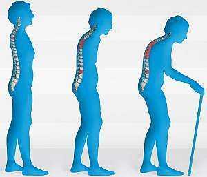 Остеопороз – ранние признаки и явные симптомы остеопороза суставов