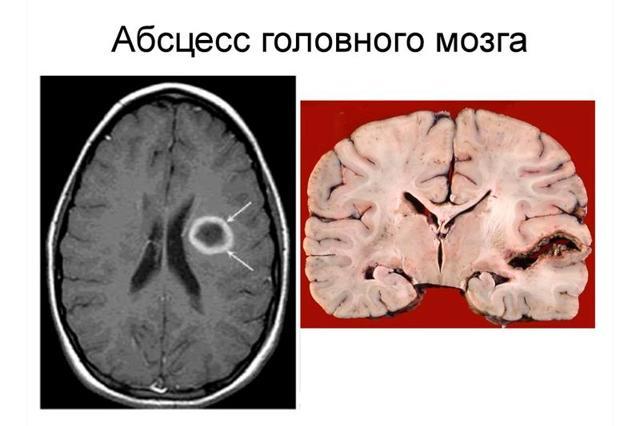 Абсцесс мозга – причины, симптомы и диагностика абсцесса головного мозга