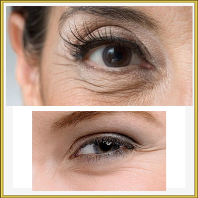 Как убрать мимические морщины вокруг глаз – эффективные методы и профилактика
