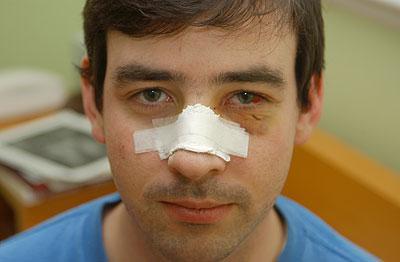 Виды перелома носа - симптомы, лечение, последствия перелома носа