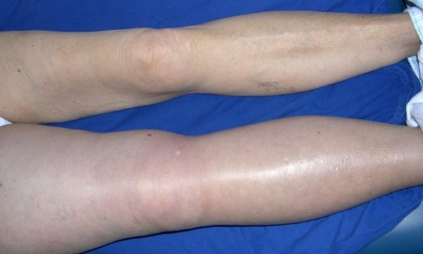 Причины и симптомы тромбофлебита нижних конечностей – как вовремя заметить тромбоз вен на ногах?
