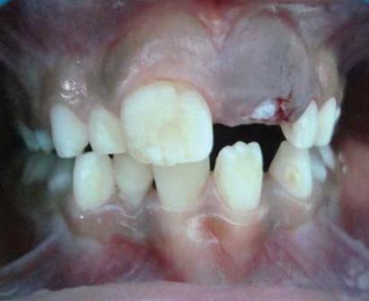 Синдром прорезывания зубов у детей, киста прорезывания: причины, симптомы и лечение