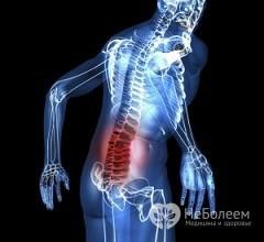 Диагностика и лечение кисты позвоночника - есть ли альтернатива операции?