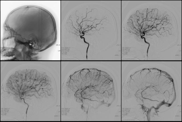 Ангиография: исследование сосудов и показания для диагностики
