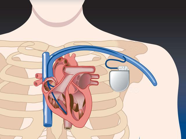 Правила жизни после установки кардиостимулятора – можно ли работать?