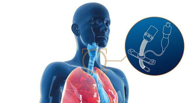 Трахеостома – показания к применению и методика проведения операции