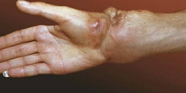 Что такое саркома – виды и симптомы саркомы, причины и прогноз