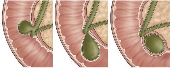 Полипы в желчном пузыре – лечение или операционное удаление?