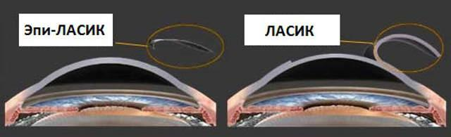 Лазерная коррекция зрения методом эпи ЛАСИК – этапы операции