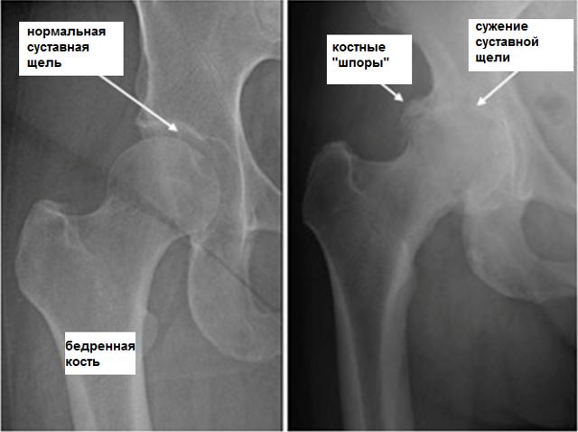 Лечение артроза тазобедренного сустава – безоперационные и операционные методы лечения остеоартроза