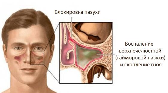 Гайморит – когда можно избежать прокола, и как не допустить осложнений
