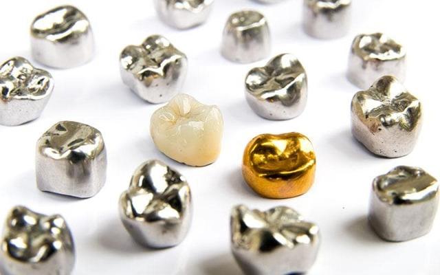 Виды зубных коронок - какие коронки лучше для протезирования зубов?