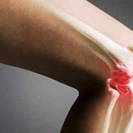 Остеомиелит – причины и симптомы опасного заболевания кости, способы лечения