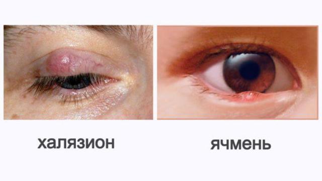 Симптомы блефарита – виды и основные причины блефарита глаз