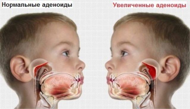 Аденотомия - операция по удалению аденоидов. Современные методы, этапы операции, отзывы