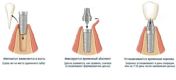 Одномоментная имплантация зубов – возможна ли имплантация сразу после удаления зуба?
