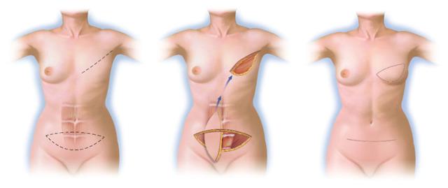 Реконструкция груди после мастэктомии – современные подходы в лечении