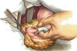 Все о лечении спаечной болезни брюшной полости – когда требуется операция?