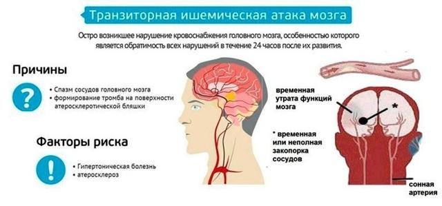 Инсульт - виды инсультов по медицинской классификации