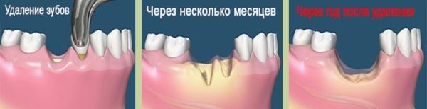 Базальная имплантация зубов – особенности процедуры и технологии