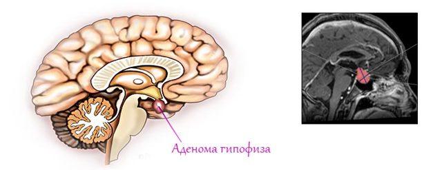 Виды аденомы гипофиза – причины и последствия аденомы гипофиза