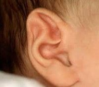Частые аномалии развития уха - врожденные пороки развития