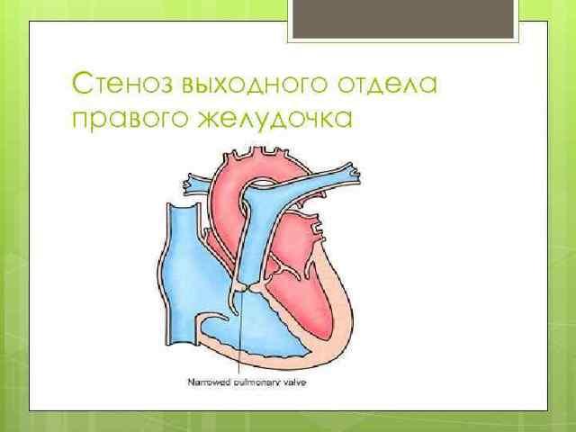 Тетрада Фалло – симптомы и современные методы диагностики и лечения