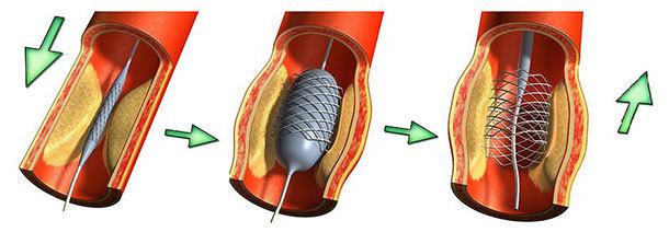 Гипоплазия позвоночной артерии - симптомы, диагностика и лечение