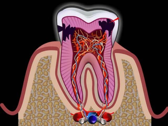 Когда зуб пульсирует и стреляет – как лечить пульпит, и есть ли шанс сохранить зубы?