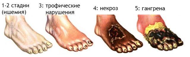 Рожа – симптомы и лечение инфекционного заболевания кожи
