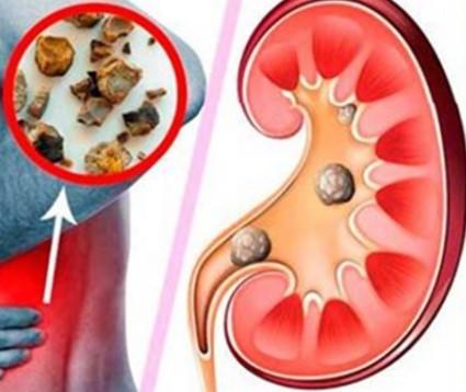 Камень в мочеточнике – симптомы и причины заболевания, основные методы  выведение и удаление камней из мочеточника