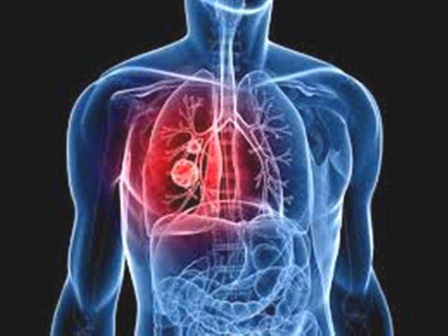 Тромбоэмболия – осложнение многих заболеваний, требующее неотложной помощи