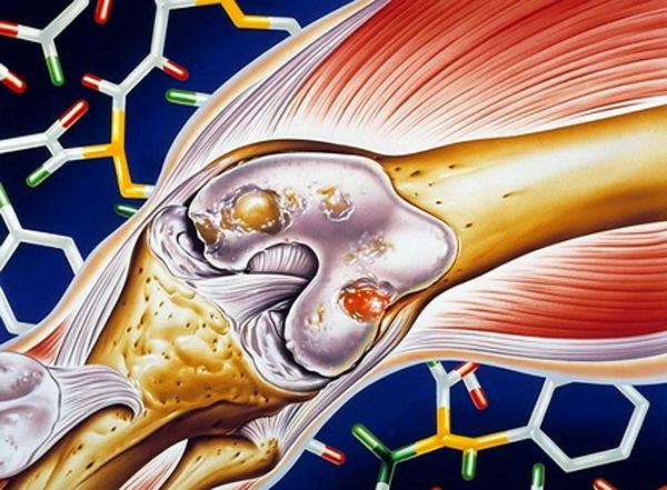Влияние статинов на послеоперационные осложнения в хирургии суставов