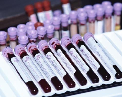 Можно ли заразиться раком – веские доводы ученых